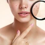 Carrot Mask – mặt nạ điều trị cho làn da gặp vấn đề